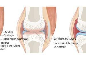 Le psoriasis avec l'arthrite affecte d'autres organes
