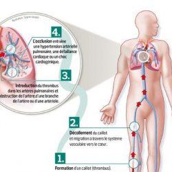 Ce sont des symptômes clairs de l'embolie pulmonaire