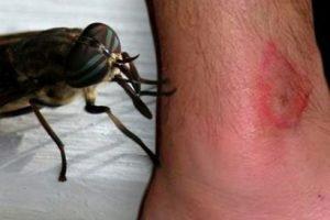 Insectes dangereux: ici vous pouvez savoir si vous êtes allergique aux piqûres d'insectes