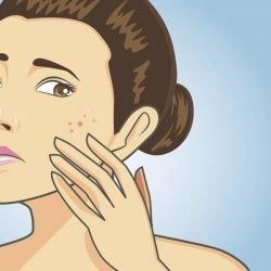 Avantages du thé vert: Éliminer l'acné